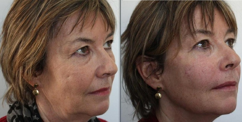 3d-lift softlift at Castleknock Cosmetic Clinic Dublin