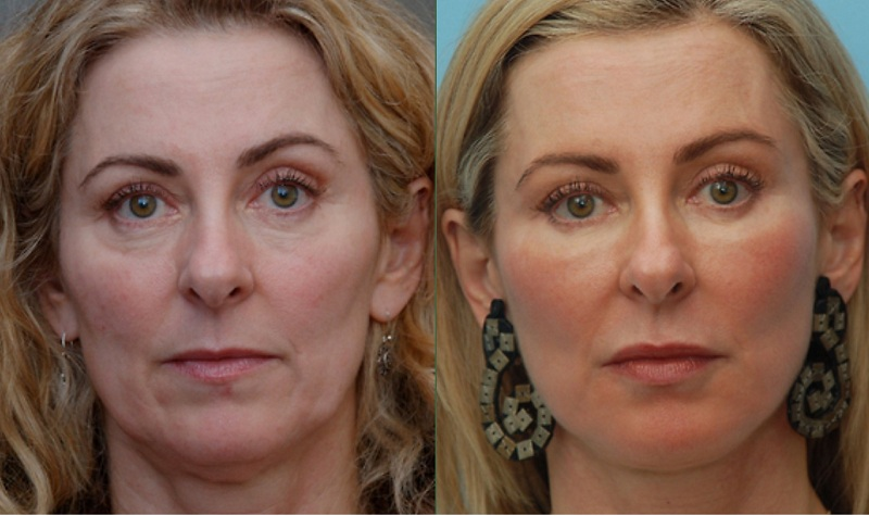 Moderate Volume Loss and tear trough correction facelift at cosmeetic clinic dublin