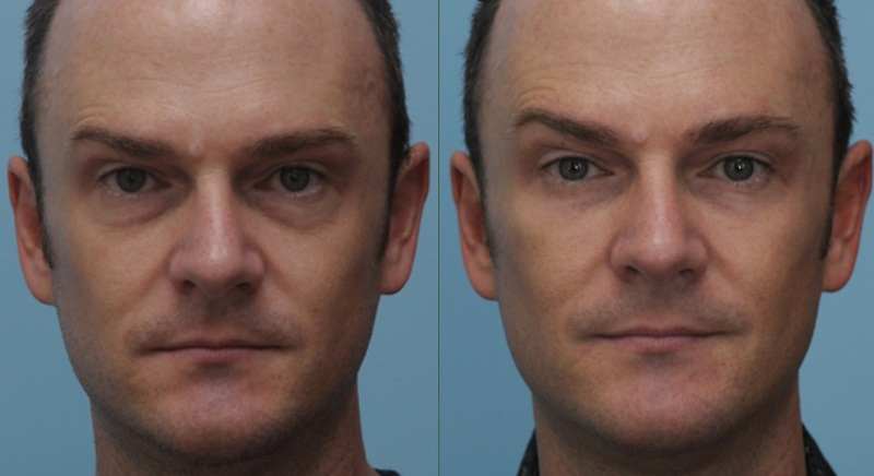 3D, softlift, liquid volume facelift for Men at cosmetic clinic dublin