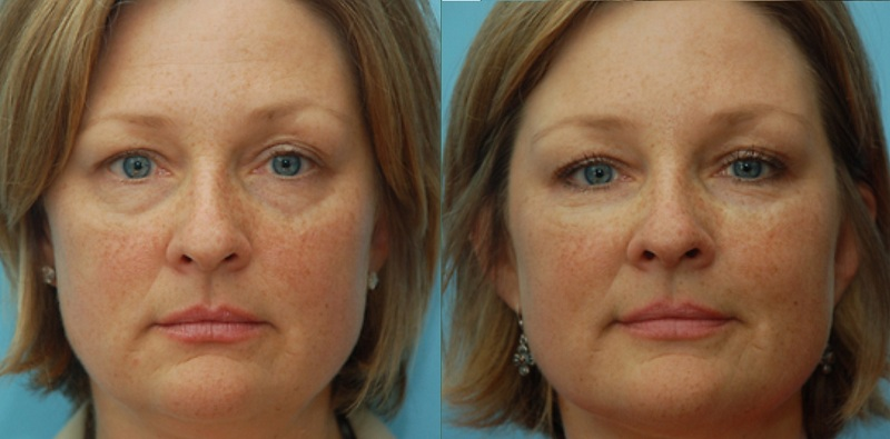 3D softlift Volume Restoration facelift Castleknock Cosmetic Clinic Dublin