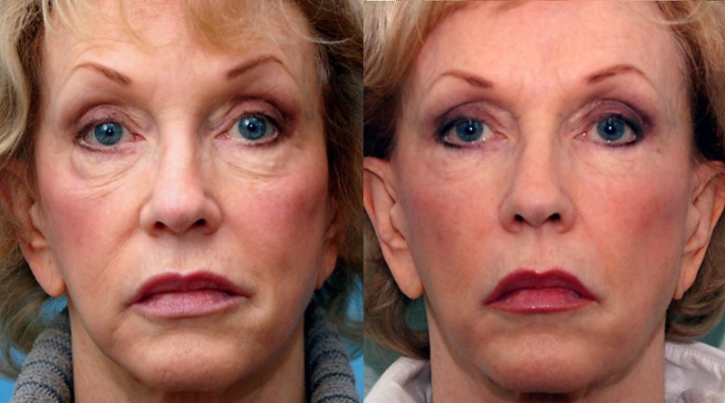 3d-lift, the softlift procedure at Castleknock Cosmetic Clinic Dublin