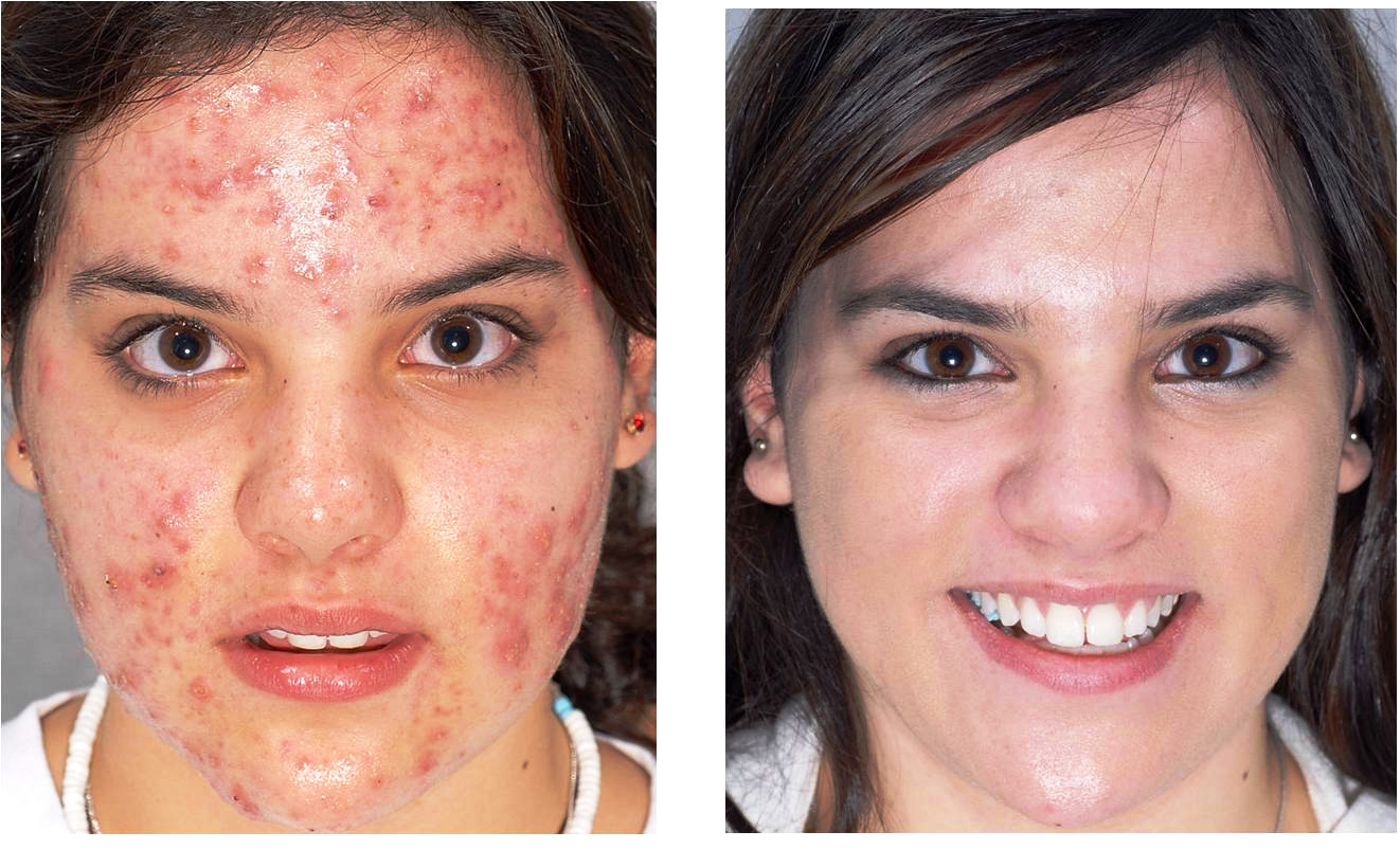 acne-21 scar active acne cosmetic clinic Dublin