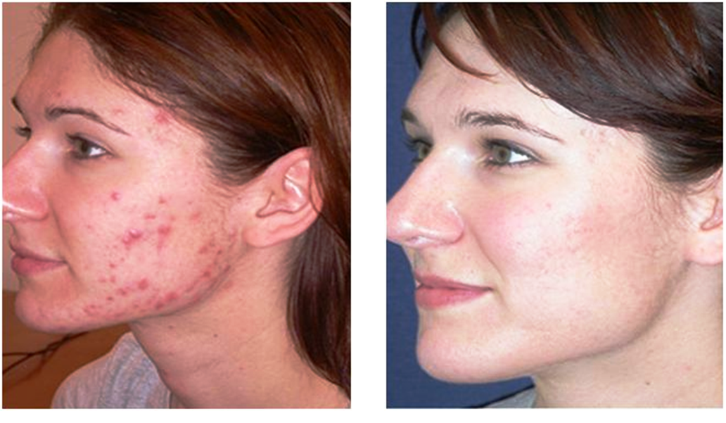 Aldactone For Acne