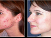 acne-41 scar active acne cosmetic clinic Dublin