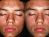 acne-full-face-2 scar active acne cosmetic clinic Dublin