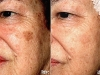age-spots-2 Age brown spots laseer treatment castleknock laser cosmetic clinic Dublin