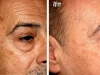 age-spots-3 Age brown spots laseer treatment castleknock laser cosmetic clinic Dublin