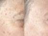 age-spots-4 Age brown spots laseer treatment castleknock laser cosmetic clinic Dublin