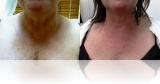 antilax-tightening-3 chest Antilax laser skin tightening RF cosmetic clinic dublin 15