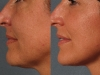 antilax-tightening Antilax laser skin tightening RF cosmetic clinic dublin 15