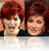 botox_sharonosbourne
