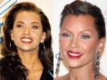 botox_vanessawilliams