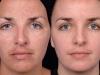 chemical-peel-2 at Castlkenock Cosmetic Clinic Dublin 15