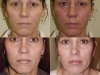 chemical-peel-progression at Castlkenock Cosmetic Clinic Dublin 15