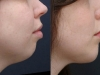 chin-enhancement-1_0