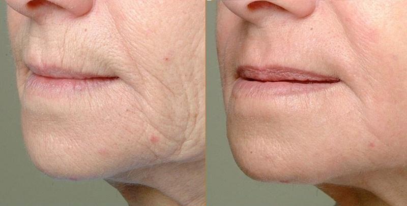 wrinkles fractional CO2 Laser castlkenock cosmetic clinic dublin 15
