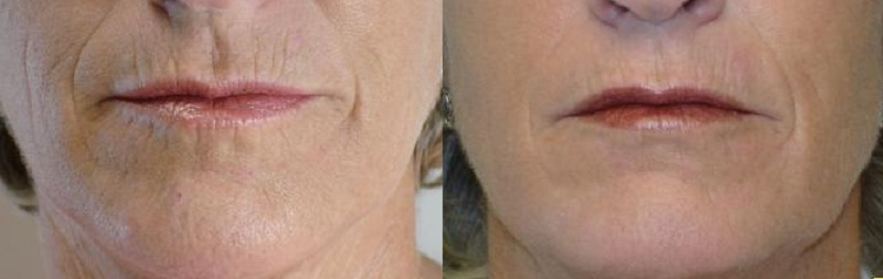lines and wrinkles scar fractional CO2 Laser castlkenock cosmetic clinic dublin 15