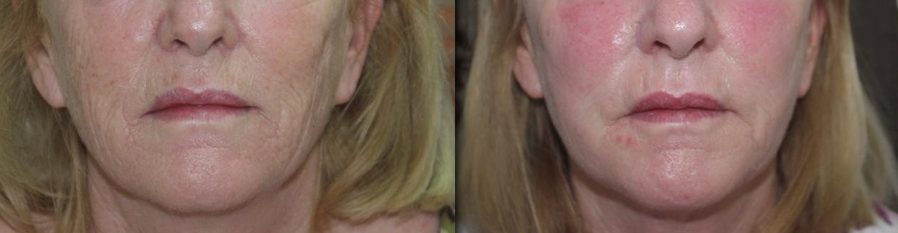 fractional-co2 deep wrinkles fractional CO2 Laser castlkenock cosmetic clinic dublin 15