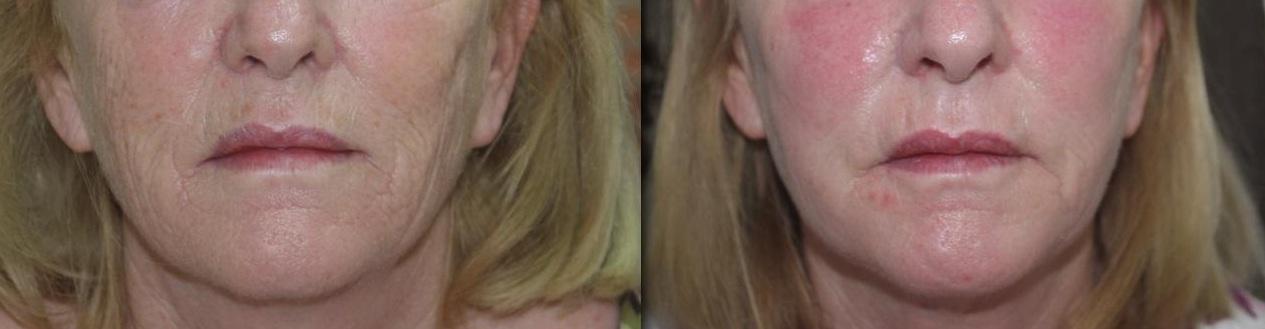 fractional-co2 deep wrinkles fractional CO2 Laser castlkenock cosmetic clinic dublin 15