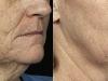 skin tightening fractional CO2 Laser castlkenock cosmetic clinic dublin 15