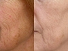 saggy skin fractional CO2 Laser castlkenock cosmetic clinic dublin 15