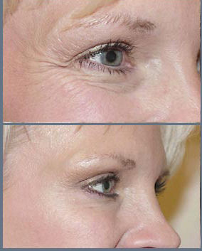 Crows Feet results with botox at cosmetic clinic dublin 15