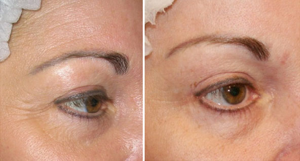 Crows Feet botox at castleknock cosmetic clinic dublin 15