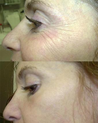 Crows Feet treated with botox clinic dublin 15