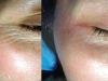 Botox to crows feet with Skin Tightening clinic dublin