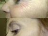 Crows Feet treated with botox clinic dublin 15