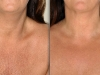 decolletage11 at Castleknock cosmetic clinic Dublin 15