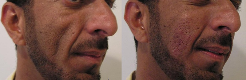dermal-fillers for man sculptra dermal fillers cosmetic clinic dublin