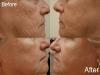cheek-lines dermal fillers cosmetic clinic dublin