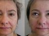 deep smile lines dermal fillers dermal fillers cosmetic clinic dublin