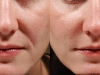 Nose to lip lines folds dermal fillers cosmetic clinic dublin