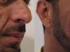 dermal-fillers for man sculptra dermal fillers cosmetic clinic dublin
