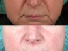 naolabial lines dermal fillers cosmetic clinic dublin