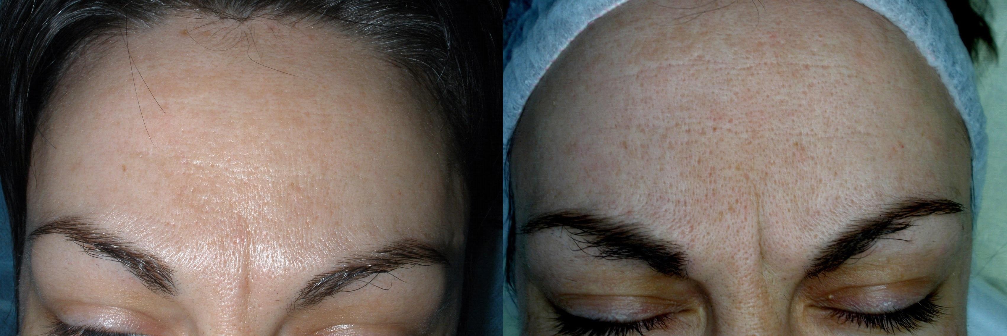 Cicatrice cesarienne et soleil 34 - Dermaroller visage avis ...
