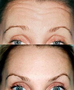 eyebrow lift with botox clinic dublin 15