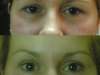 eyebrow lift with botox clinic dublin 15