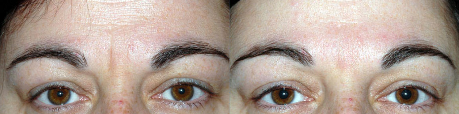 andry frown lines botox castlkenock cosmetic clinic dublin 15