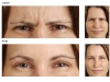 compare Frown Lines botox castlkenock cosmetic clinic dublin