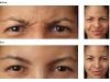 Frown Lines botox castlkenock cosmetic clinic dublin 15