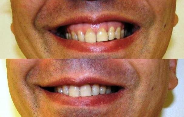 gummy smile botox cosmetic clinic dublin 15