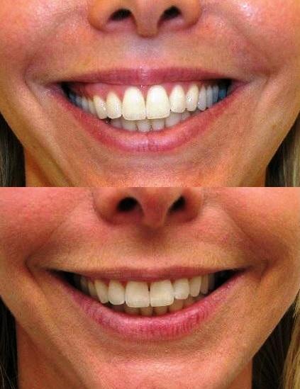 gummy smile botox cosmetic clinic dublin