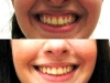 gummy smile botox cosmetic clinic dublin 15