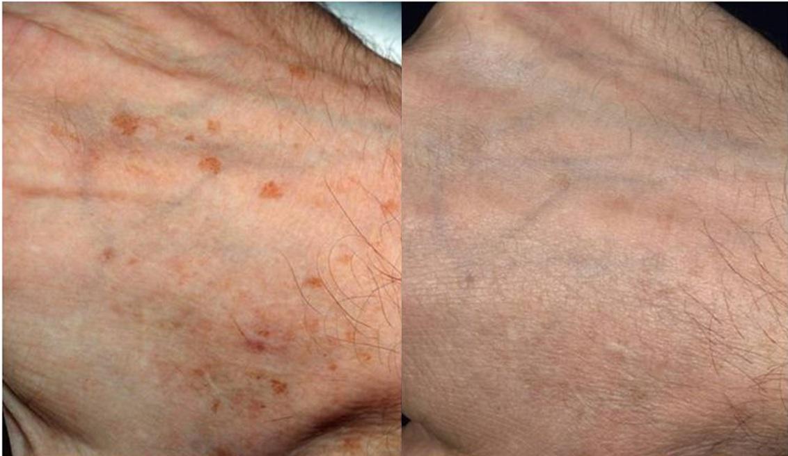hand-rejuvenation-1a
