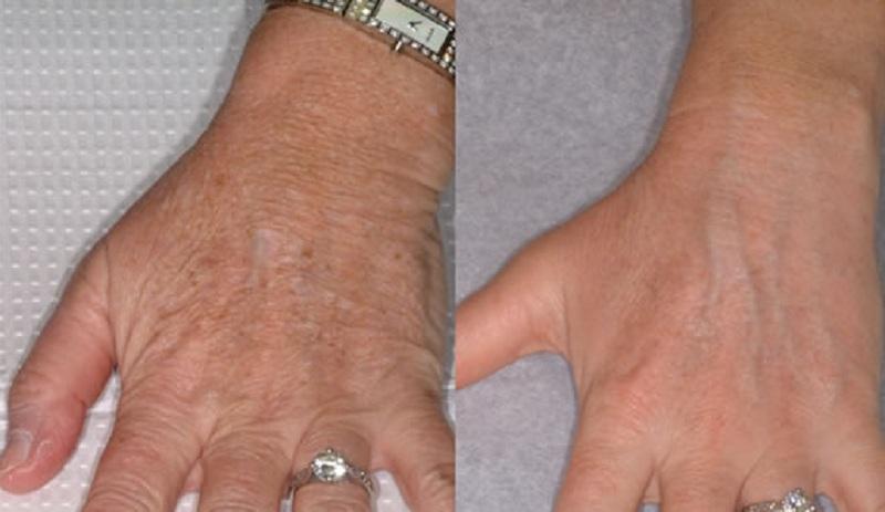 hand-rejuvenation-2