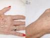 hand-rejuvenation-1