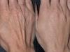 hand-rejuvenation-3